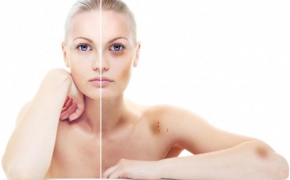 Как избавиться от синяка на теле и лице